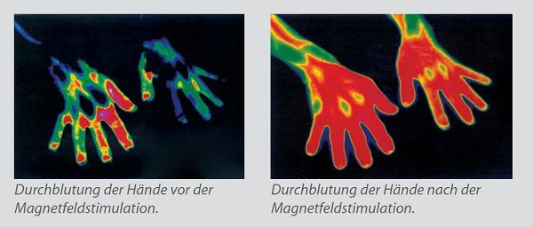 Blutzirkulation durch Magnetfelder